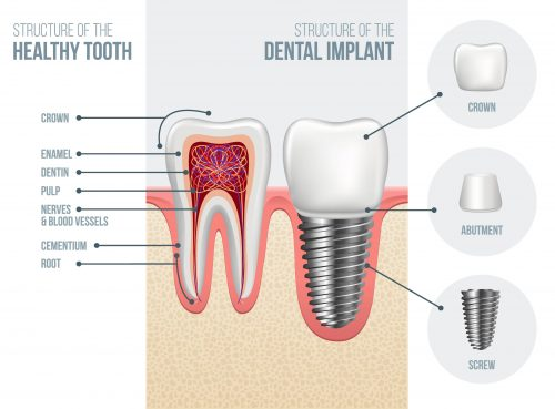 How dental Implants Work https://artisticsmilesdentistry.com/services/preventative-care/